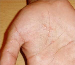 La psoriasis sobre las uñas el precio